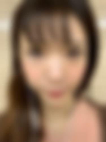 メイリーの施術レポート,鼻,隆鼻術,鼻尖部延長(鼻尖形成),プロテーゼ(I型),ホウジンの画像