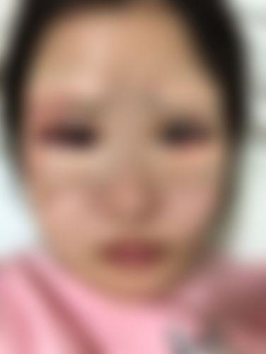 メイリーの施術レポート,目,二重,埋没法,目の上のたるみ取り,上眼瞼切開(上瞼たるみ取り),下眼瞼下制法(たれ目・グラマラスライン形成術),頬,プロテーゼ挿入の画像