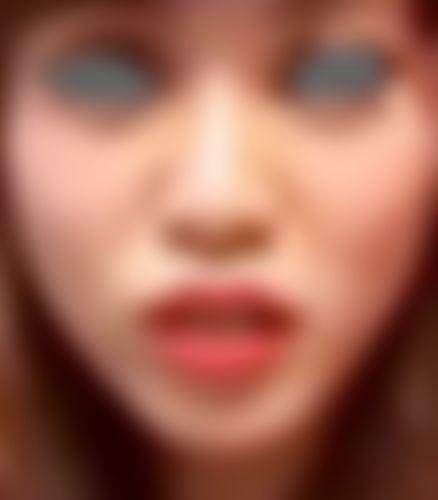 メイリーの鼻,質問,鼻尖形成,小鼻縮小,雑談の画像