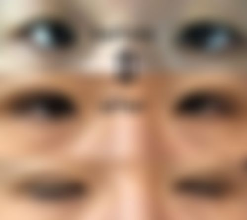 メイリーの施術レポート,目,二重,埋没法,田中先生の画像