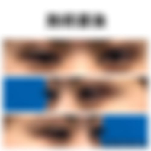 メイリーの施術レポート,二重,目頭切開,埋没,まぶたの脂肪取り,まぶた脱脂,目,埋没法,目頭切開,二重まぶた,たるみ・クマ取り,上眼瞼脱脂(上まぶたの脱脂),目を大きく,安本匠の画像